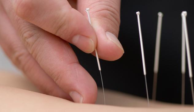 Akupunktur_202.jpg