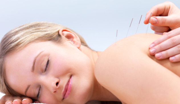 akupunktur3.jpg